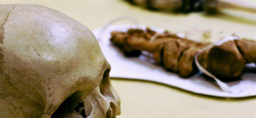 MHC Skull Bones